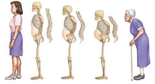 Image result for loãng xương