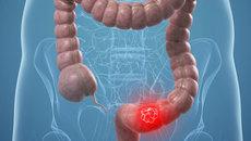 Biểu hiện nào cho thấy bạn đã mắc ung thư đại tràng?