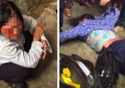 Hai phụ nữ bị đánh nhập viện vì nghi đi bắt cóc trẻ con