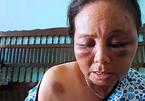 Bà bán tăm kể phút bị đánh bầm dập vì nghi bắt cóc trẻ em