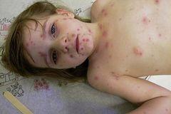 Các biến chứng nguy hiểm của bệnh thủy đậu