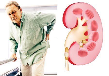 60% bệnh nhân sỏi thận tái phát