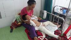 Nghịch xăng, bé 4 tuổi cháy xém từ bụng đến chân
