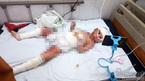 Bé gái 5 tuổi bỏng toàn thân kiên cường trải qua 5 lần phẫu thuật