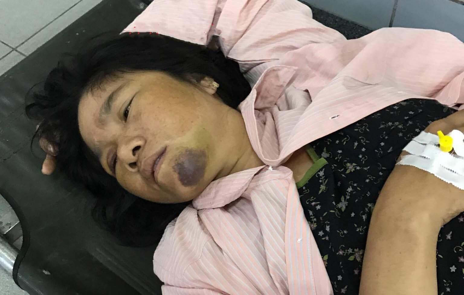 Bà bán tăm bị đánh được chuyển lên BV Bạch Mai chụp chiếu