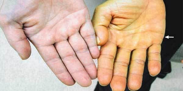 Viêm gan B,Nguyên nhân bệnh viêm gan B,Điều trị bệnh viêm gan B