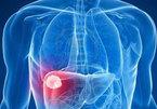Những điều cần biết về ung thư gan di căn