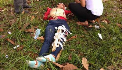 Truy đuổi cướp giật túi xách, cô gái tông vào cột điện gãy chân
