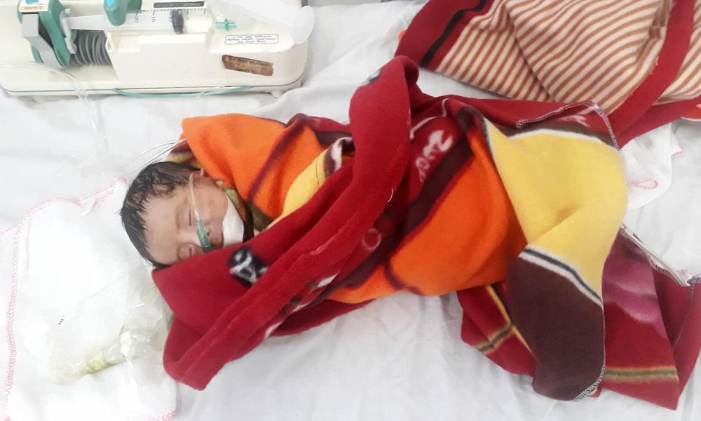 Bé sơ sinh bị lòi ruột, gia đình nghèo cầu cứu