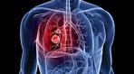 Nguyên nhân nào dẫn đến bệnh ung thư phổi
