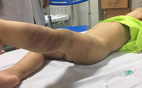 Hà Nội: Bé trai 14 tháng nghi bị đánh đập, bỏ lại BV