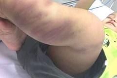 Điều tra nghi án bé trai 1 tuổi bị bạo hành dã man ở Hà Nội