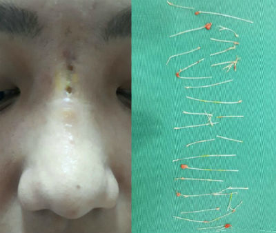 Mũi nữ diễn viên thủng nhiều lỗ sau 2 tháng cấy chỉ nâng mũi