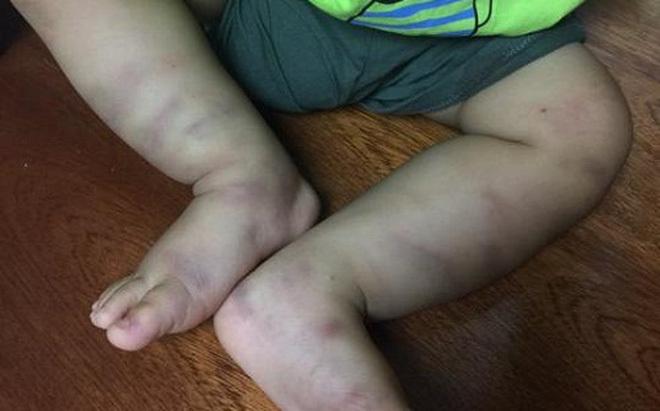 Hà Nội: Khởi tố vụ bé trai bị đánh đập, bỏ lại bệnh viện