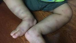Lộ diện người bỏ lại BV bé trai 14 tháng bị bạo hành dã man