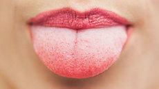 Không nên nhầm lẫn ung thư lưỡi với bệnh nhiệt miệng
