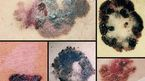 Bạn hiểu bệnh ung thư da như thế nào?