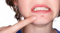 Bạn có đang nhầm lẫn giữa ung thư da và mụn nhọt thông thường?