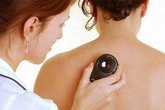 Các giai đoạn của ung thư da mà bạn nên biết