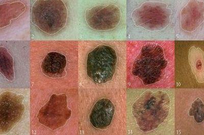 Điều trị u hắc bào ác tính