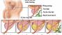 Các giai đoạn của bệnh ung thư tiền liệt tuyến