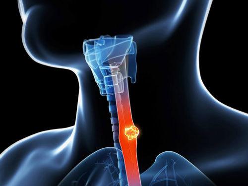 Dấu hiệu nhận biết ung thư thực quản