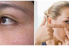 Trị mụn thịt quanh mắt như thế nào để lấy lại vẻ đẹp đôi mắt?