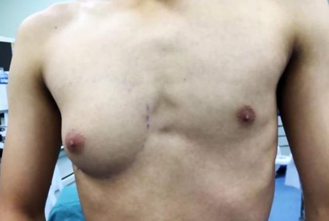 Lạ lùng người đàn ông có một bên ngực của phụ nữ