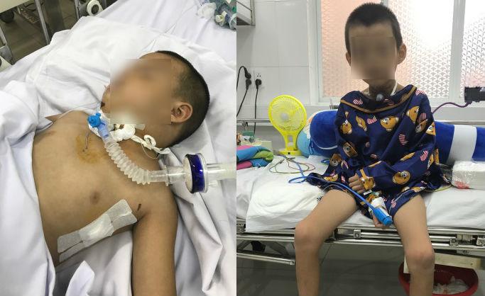 tai nạn trẻ em, bệnh nhi, bệnh viện Chợ Rẫy, bé trai