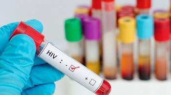 Phạt tù đến 18 năm khi cưỡng dâm khiến người khác nhiễm HIV