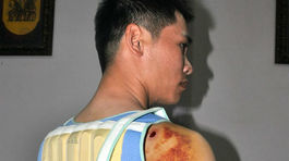 Con trai bí thư xã bị tố dùng súng điện bắn, đánh người nhập viện