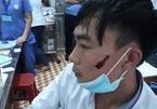 Điều dưỡng bị người nhà bệnh nhân cầm dao rượt, đấm rách mặt