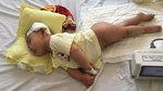 Cha mẹ xin cơm ăn, vay tiền mổ não cho con gái