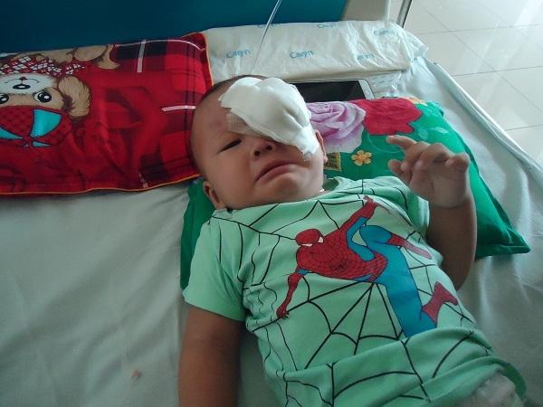Cha khóc nghẹn nhìn con vật lộn với khối u trên mắt