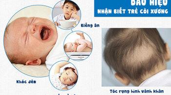 Những điều nên biết về bệnh còi xương ở trẻ em
