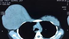 Mẹ hoãn phẫu thuật khối u tuyến vú cực lớn để sinh con