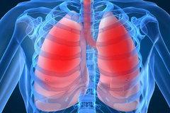 Điều trị bệnh viêm phổi