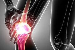 Triệu chứng ung thư xương giai đoạn cuối