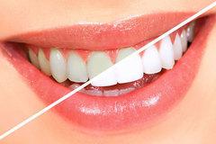 Nguyên nhân khiến bạn dễ bị bệnh răng miệng