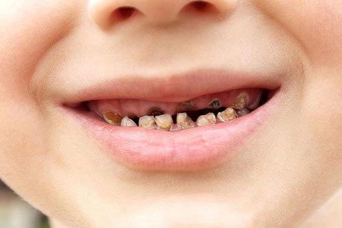 7 loại thực phẩm thúc đẩy quá trình sâu răng