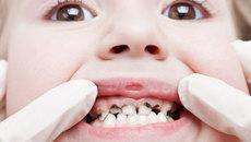 4 bệnh về răng miệng phổ biến ở Việt Nam0