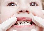 4 bệnh về răng miệng phổ biến ở Việt Nam
