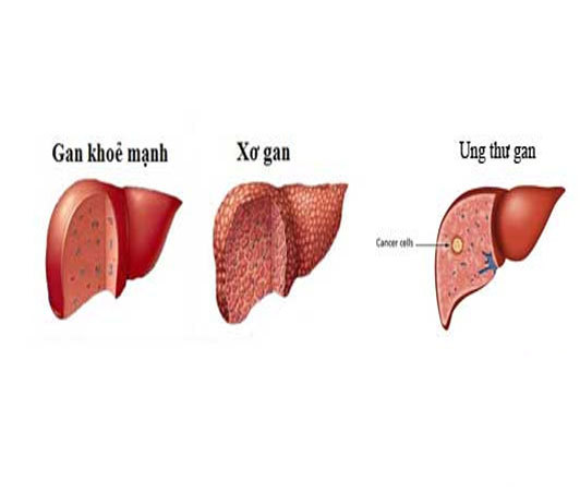 Bệnh gan tại Việt Nam - thực trạng đáng báo động