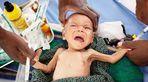 Hậu quả khó lường của trẻ bị suy dinh dưỡng