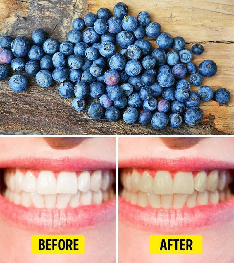 10 loại thực phẩm làm hại răng của bạn - ảnh 1