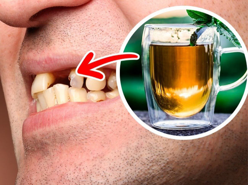 10 loại thực phẩm làm hại răng của bạn - ảnh 10