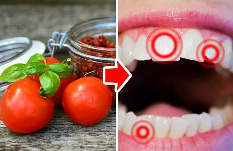 10 loại thực phẩm làm hại răng của bạn - ảnh 7
