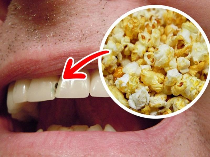 10 loại thực phẩm làm hại răng của bạn - ảnh 6