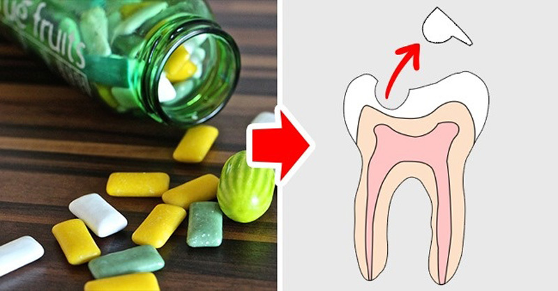 10 loại thực phẩm làm hại răng của bạn - ảnh 5