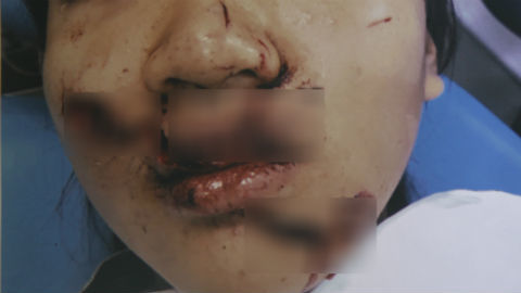 Nữ sinh Sài Gòn rách nát mặt khi ngã vào cửa kính